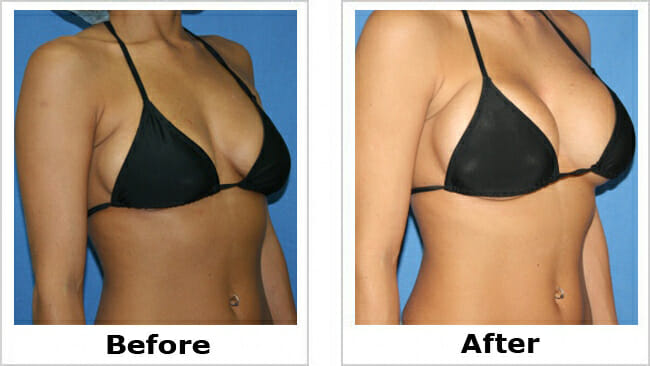 breast size beforea and after